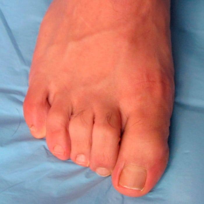 Deformidades dedos menores - antes