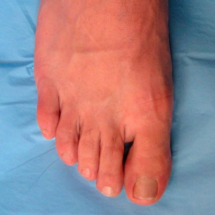 Deformidades dedos menores - despues