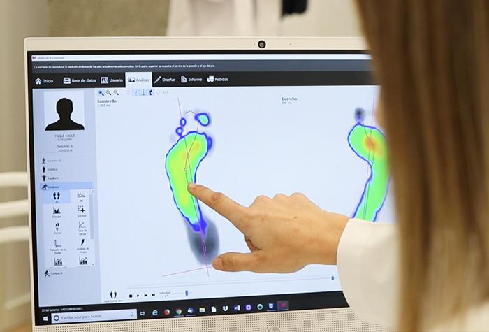 Estudio biomecánico del pie