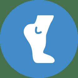 Rodillas en valgo (rodillas en X)