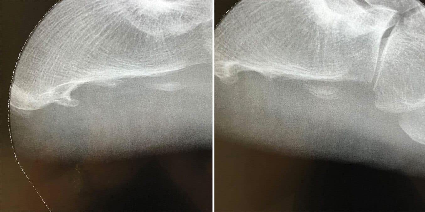 Espolón calcáneo antes y después de tratamiento con ondas de choque