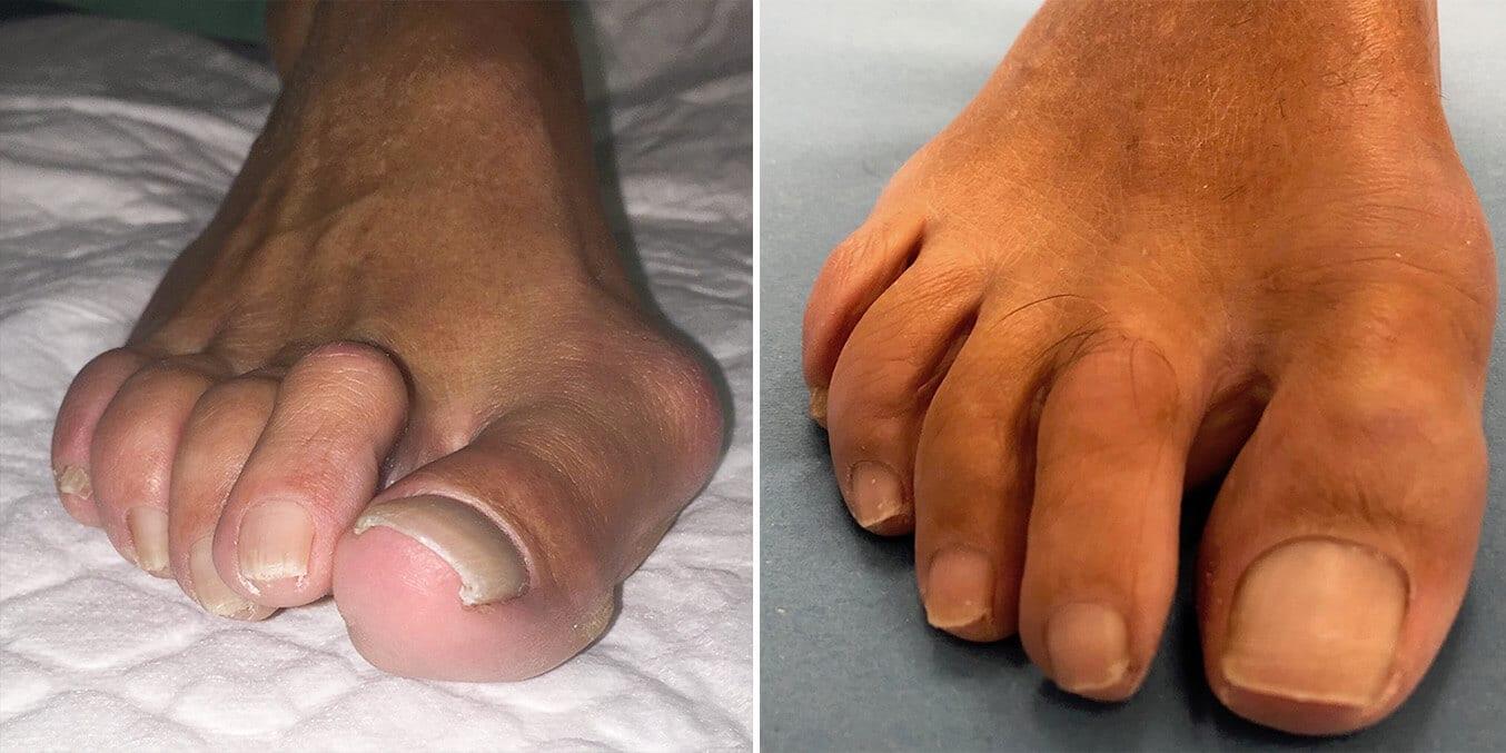 Antes y después de tratamiento para deformidades en el primer radio