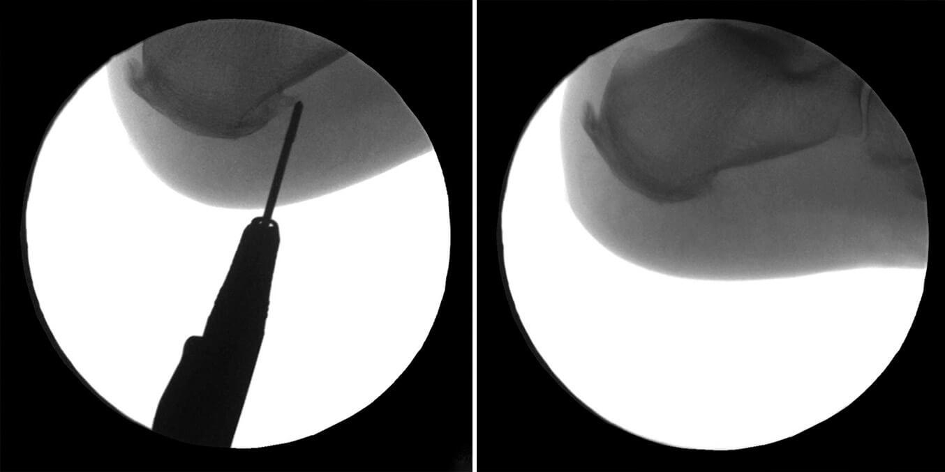 Antes y después espolón calcáneo tratamiento