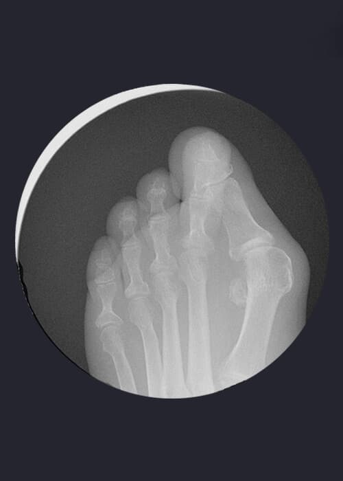Radiografía de pie con juanete