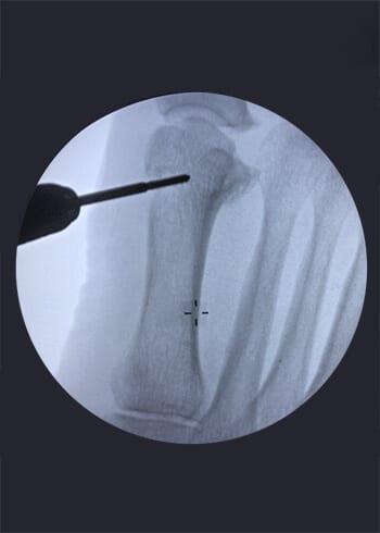 Rdiografia de limado de hueso del pie Hallux Valgus