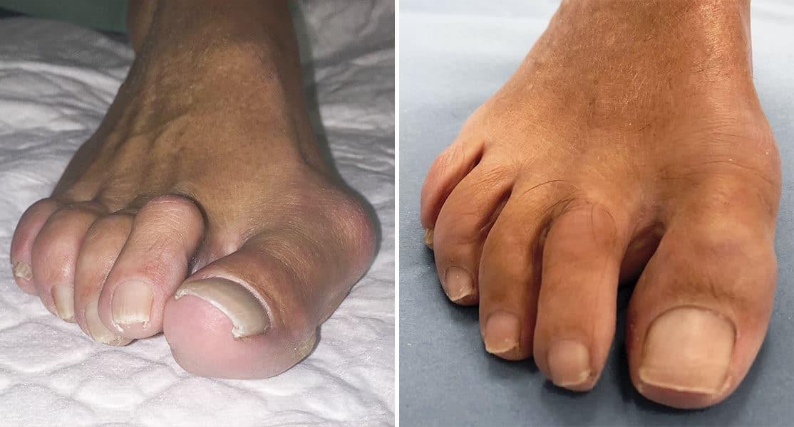 Pie antes y después de operación juanete