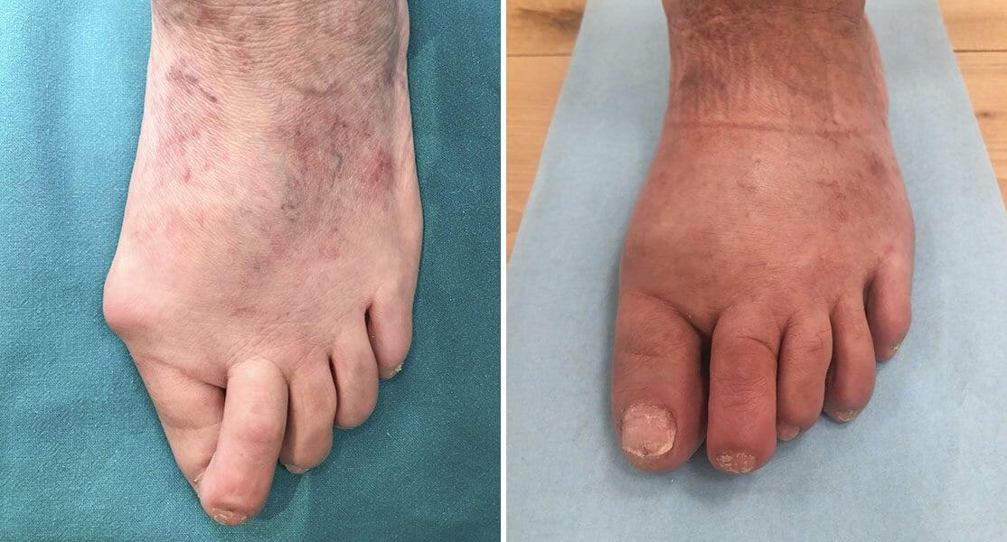 Pie antes y después de operación de juanetes