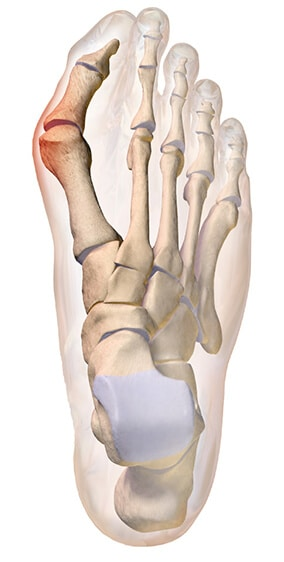 Imagen 3D de huesos del pie con juanete