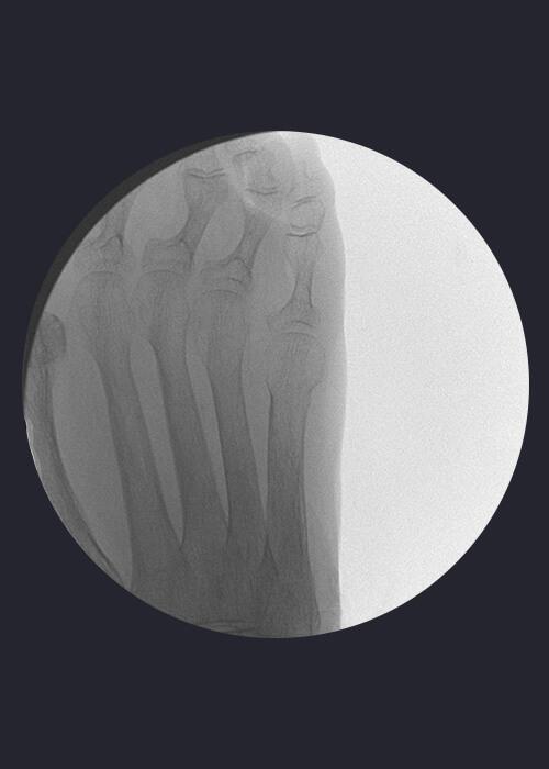 Radiografía heloma interdigital
