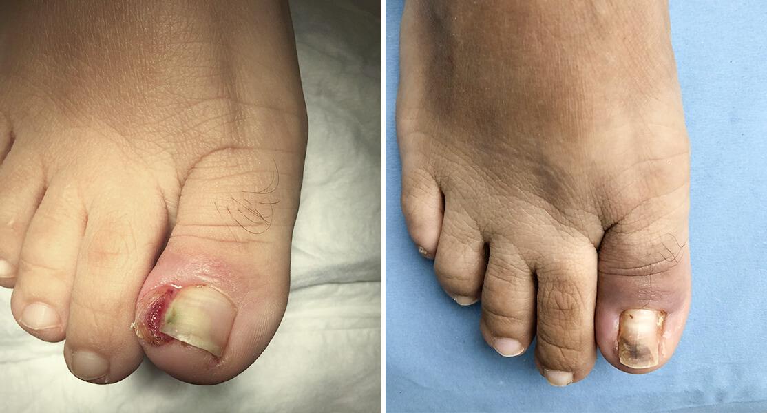 Antes y después de tratamiento de uña encarnada