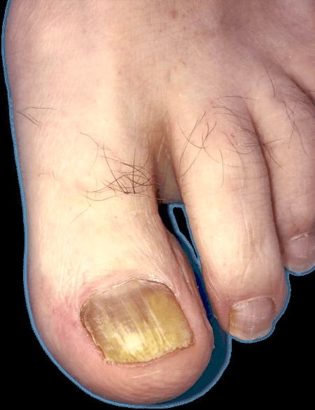 Uña del pie con cambio de coloración