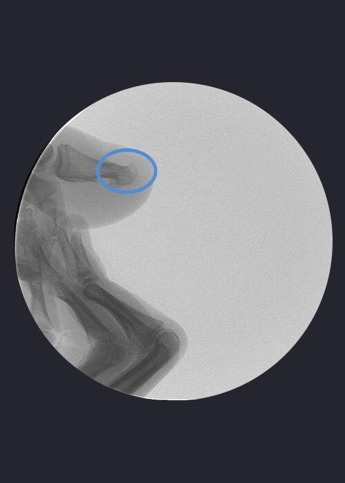 Radiografía distrofia ungueal