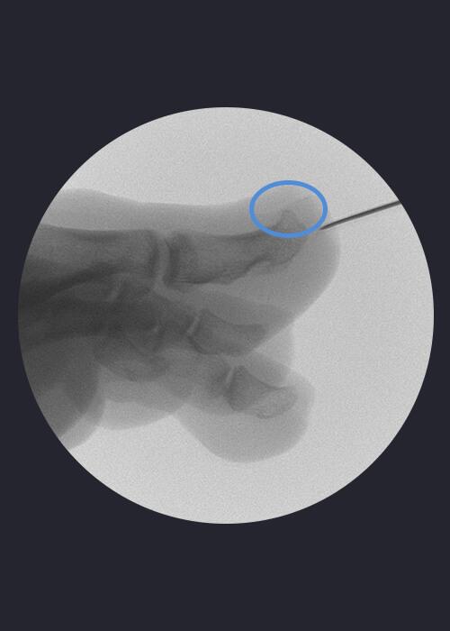 Operación cirugía MIS distrofia ungueal