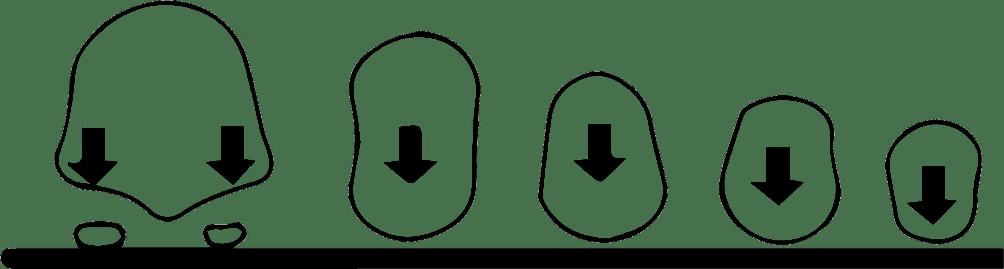 Metatarsiano alineado