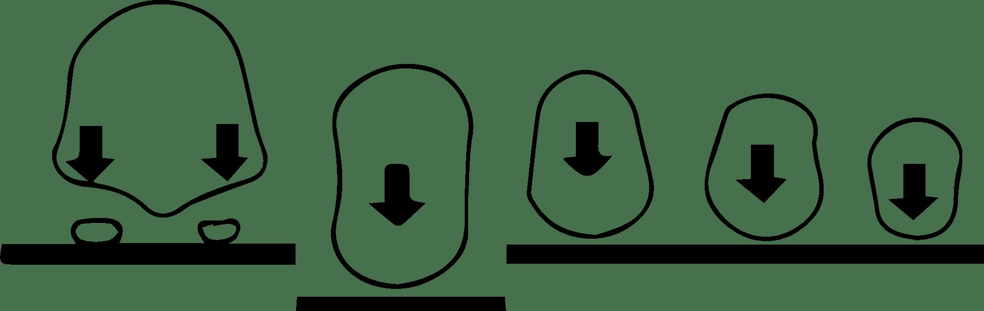 Dolor bajo el segundo metatarsiano