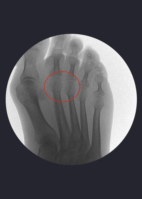 Radiografía de metatarsalgia