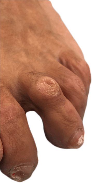Deformidad del dedo del pie