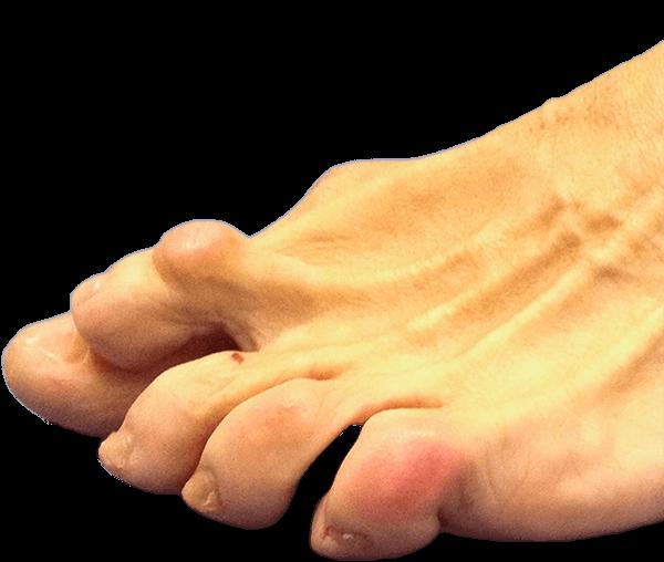 Pie con deformidad en dedo menor